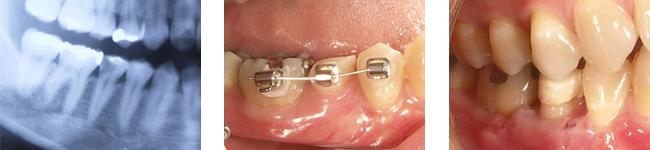 歯肉縁下カリエス処置